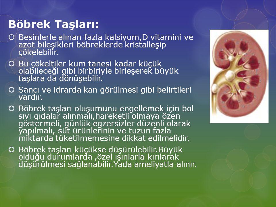 Böbrek Taşları:  Besinlerle alınan fazla kalsiyum,D vitamini ve azot bileşikleri böbreklerde kristalleşip çökelebilir.  Bu çökeltiler kum tanesi kad