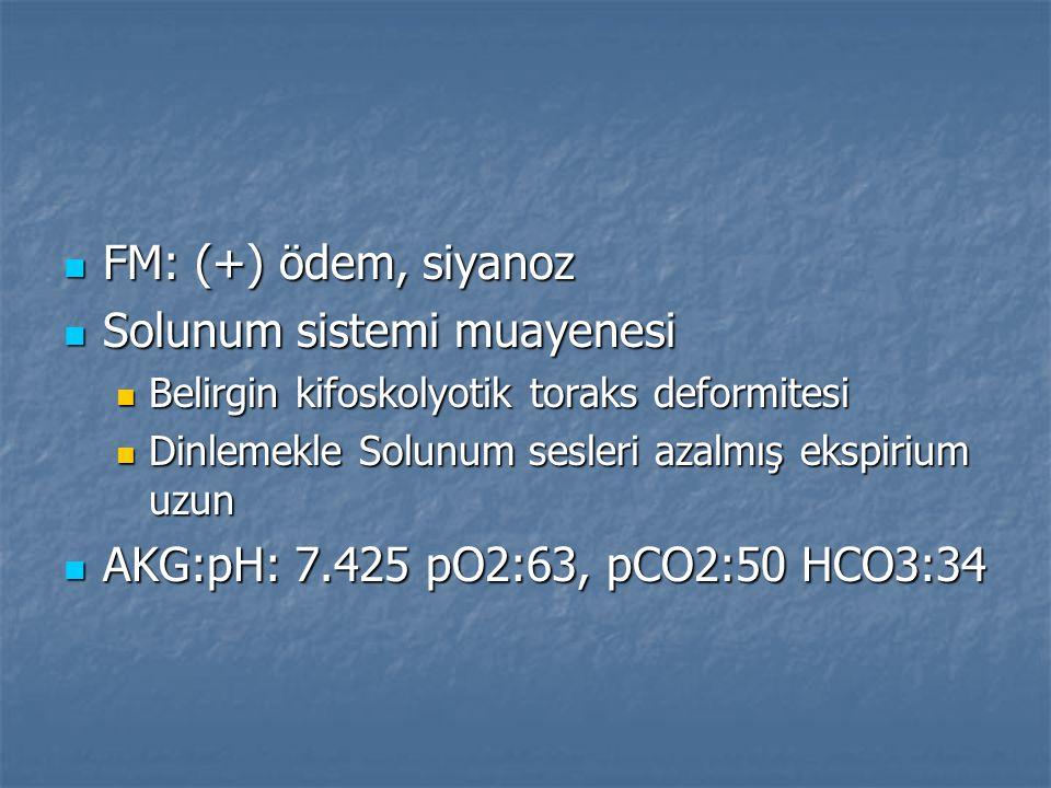 FM: (+) ödem, siyanoz FM: (+) ödem, siyanoz Solunum sistemi muayenesi Solunum sistemi muayenesi Belirgin kifoskolyotik toraks deformitesi Belirgin kif