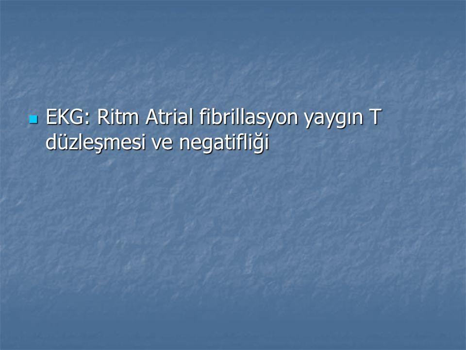 EKG: Ritm Atrial fibrillasyon yaygın T düzleşmesi ve negatifliği EKG: Ritm Atrial fibrillasyon yaygın T düzleşmesi ve negatifliği