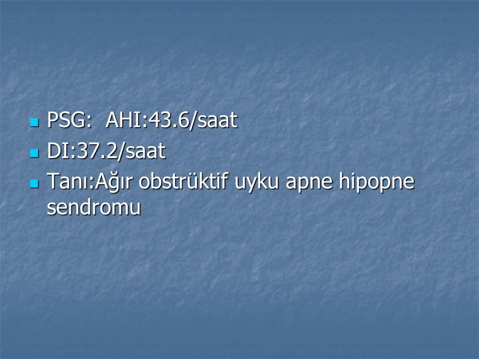 PSG: AHI:43.6/saat PSG: AHI:43.6/saat DI:37.2/saat DI:37.2/saat Tanı:Ağır obstrüktif uyku apne hipopne sendromu Tanı:Ağır obstrüktif uyku apne hipopne