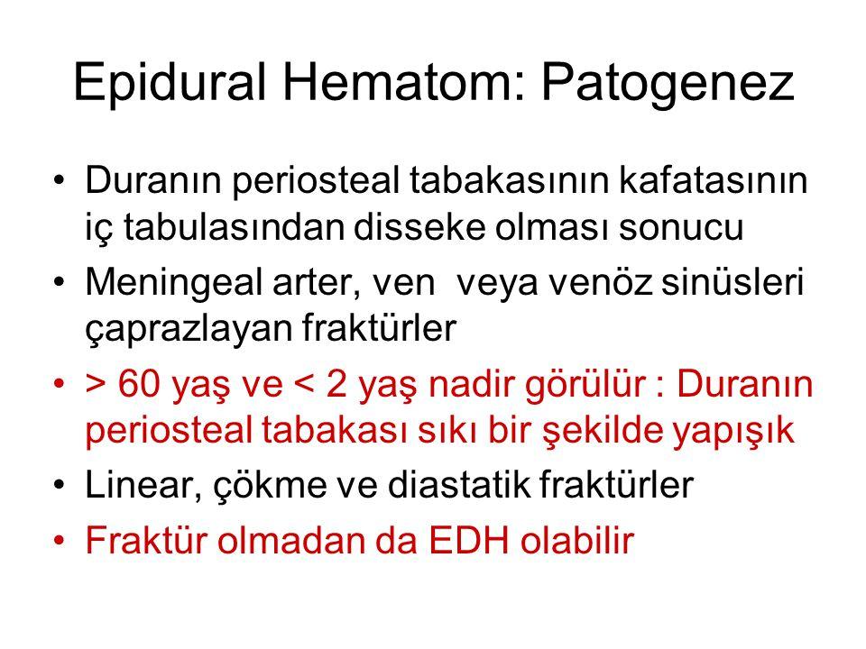 Epidural Hematom: Patogenez Duranın periosteal tabakasının kafatasının iç tabulasından disseke olması sonucu Meningeal arter, ven veya venöz sinüsleri
