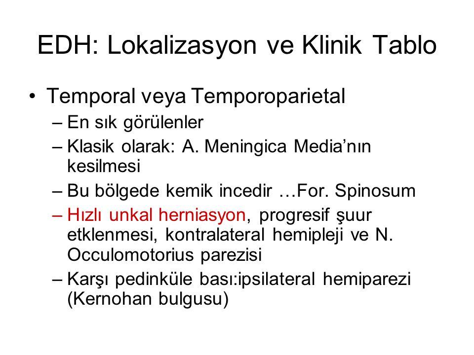 EDH: Lokalizasyon ve Klinik Tablo Temporal veya Temporoparietal –En sık görülenler –Klasik olarak: A. Meningica Media'nın kesilmesi –Bu bölgede kemik