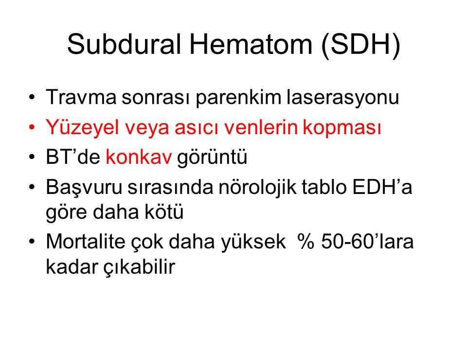 Subdural Hematom (SDH) Travma sonrası parenkim laserasyonu Yüzeyel veya asıcı venlerin kopması BT'de konkav görüntü Başvuru sırasında nörolojik tablo