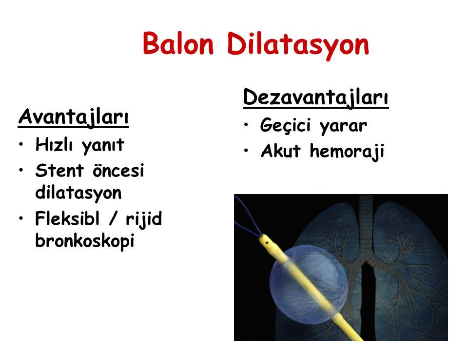 Balon Dilatasyon Avantajları Hızlı yanıt Stent öncesi dilatasyon Fleksibl / rijid bronkoskopi Dezavantajları Geçici yarar Akut hemoraji