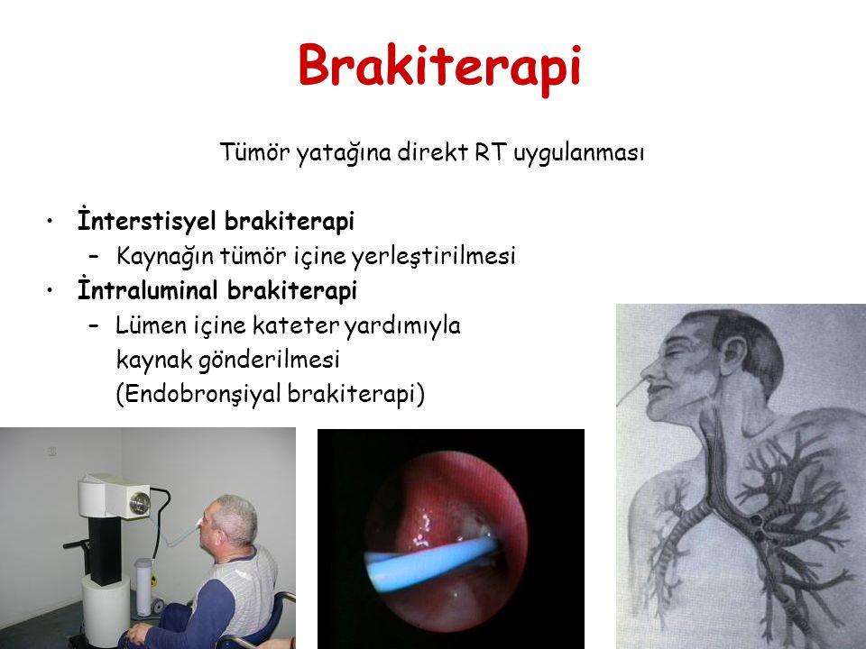 Brakiterapi Tümör yatağına direkt RT uygulanması İnterstisyel brakiterapi –Kaynağın tümör içine yerleştirilmesi İntraluminal brakiterapi –Lümen içine