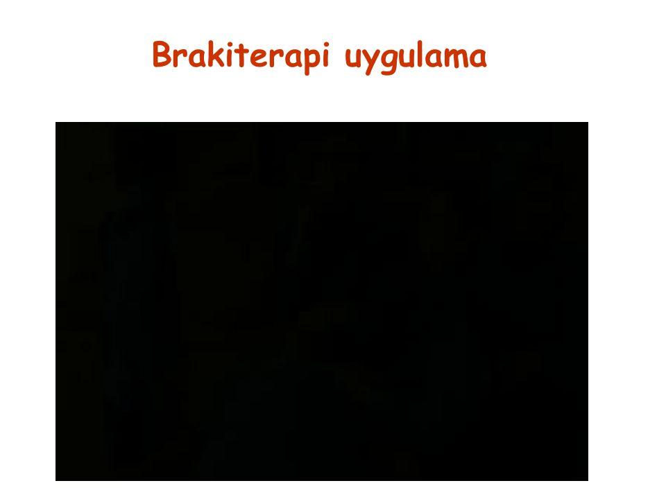 Brakiterapi uygulama