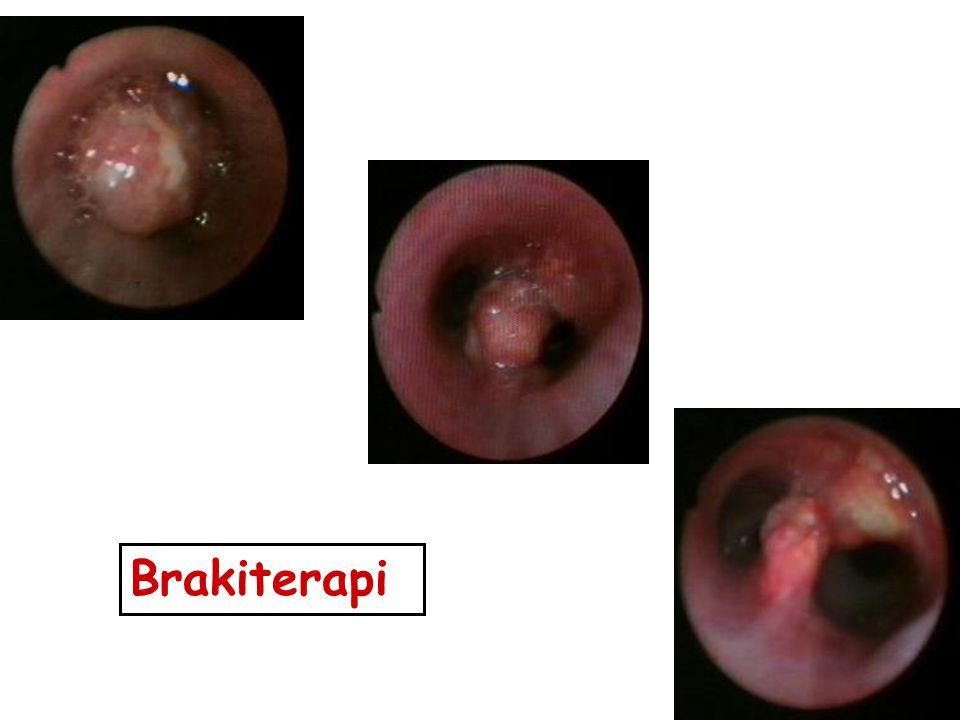 Brakiterapi
