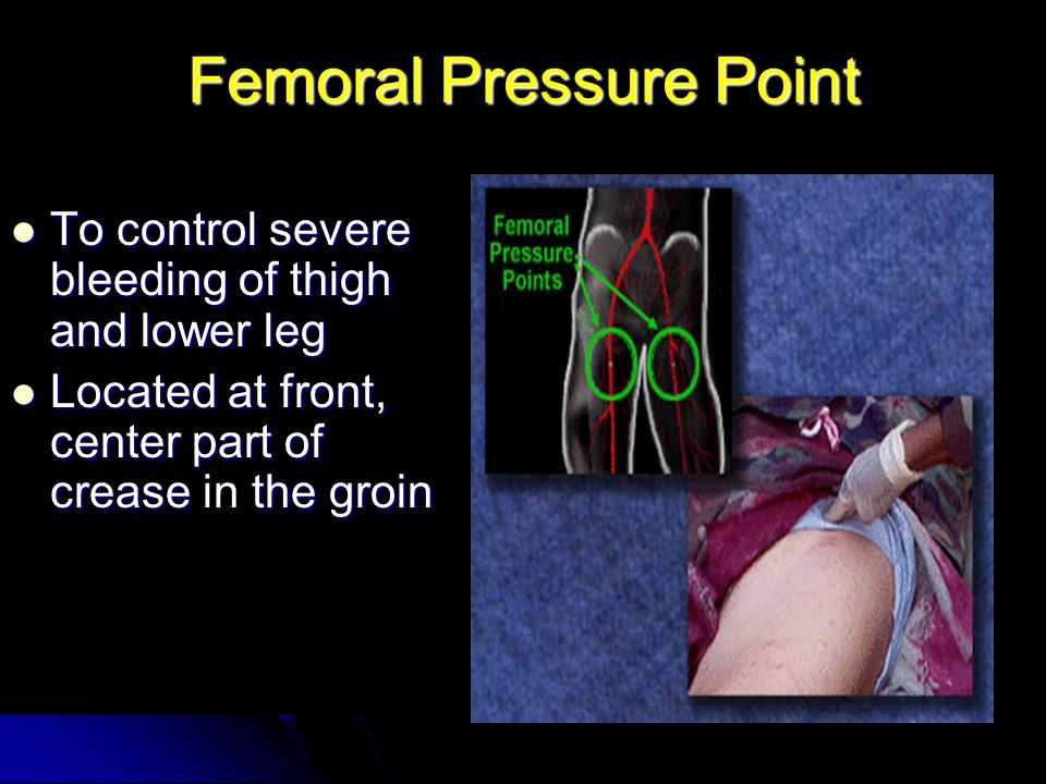 Femoral Pressure Point To control severe bleeding of thigh and lower leg To control severe bleeding of thigh and lower leg Located at front, center part of crease the groin Located at front, center part of crease in the groin