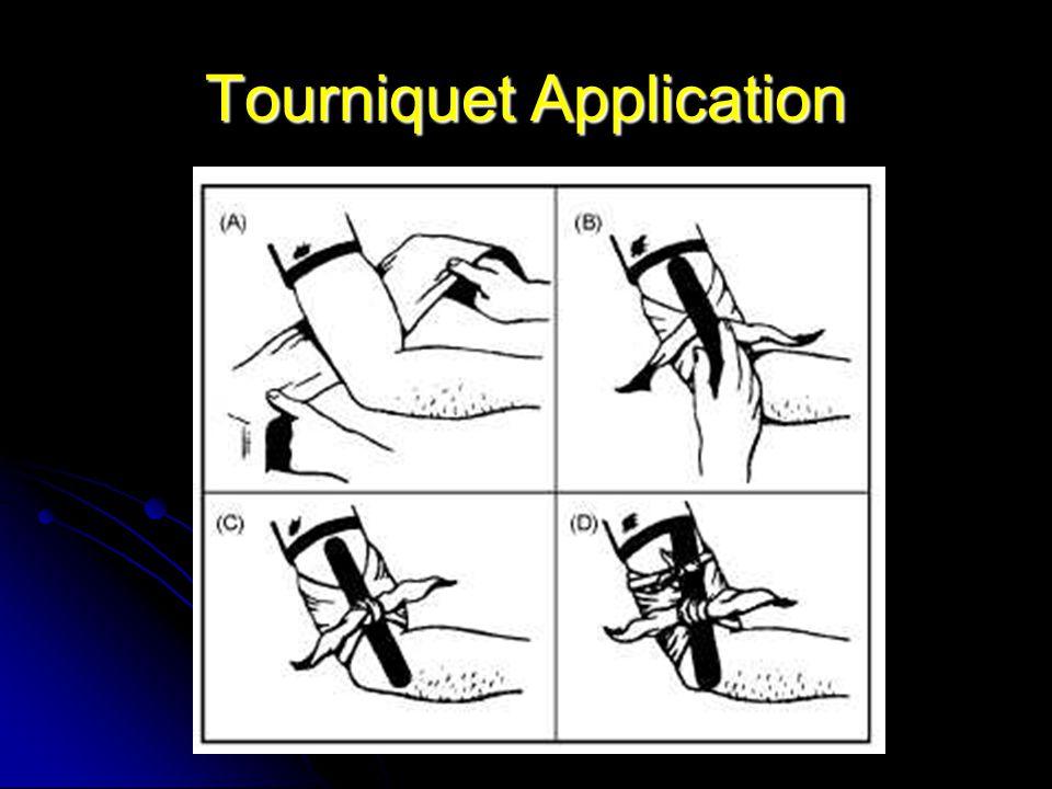 Tourniquet Self-Application