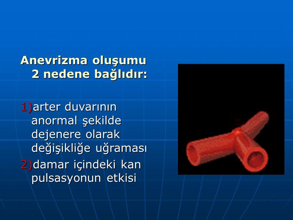 Anevrizma oluşumu 2 nedene bağlıdır: 1)arter duvarının anormal şekilde dejenere olarak değişikliğe uğraması 2)damar içindeki kan pulsasyonun etkisi