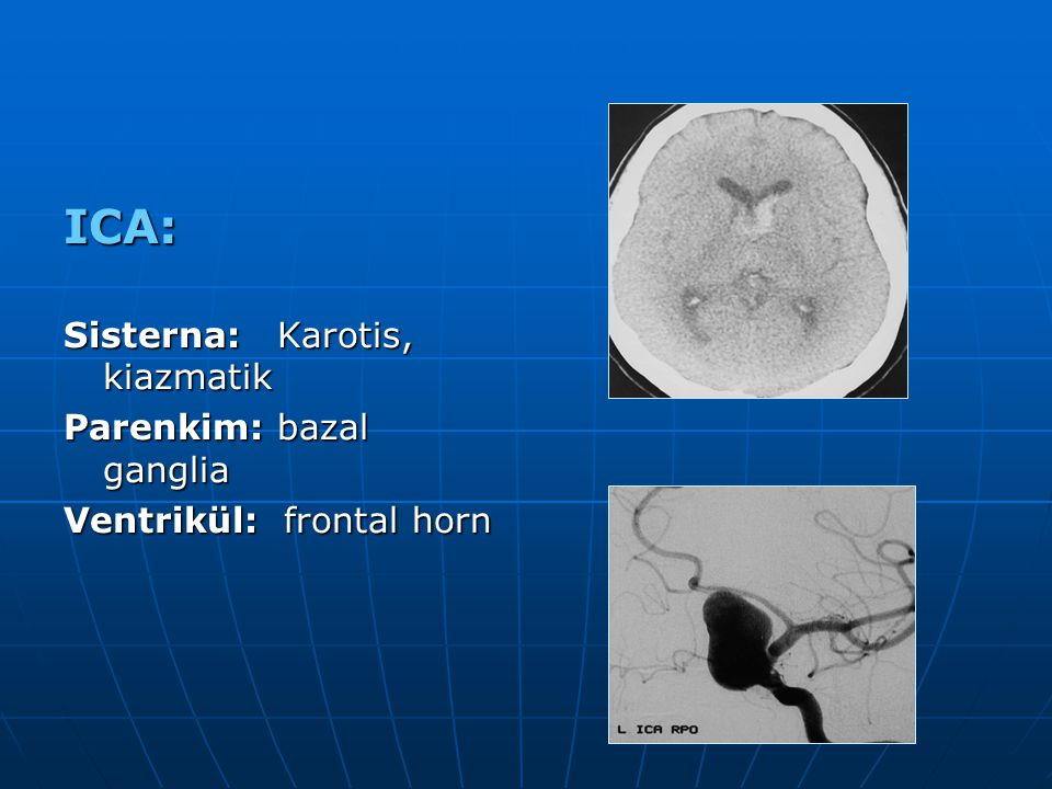 ICA: Sisterna: Karotis, kiazmatik Parenkim: bazal ganglia Ventrikül: frontal horn