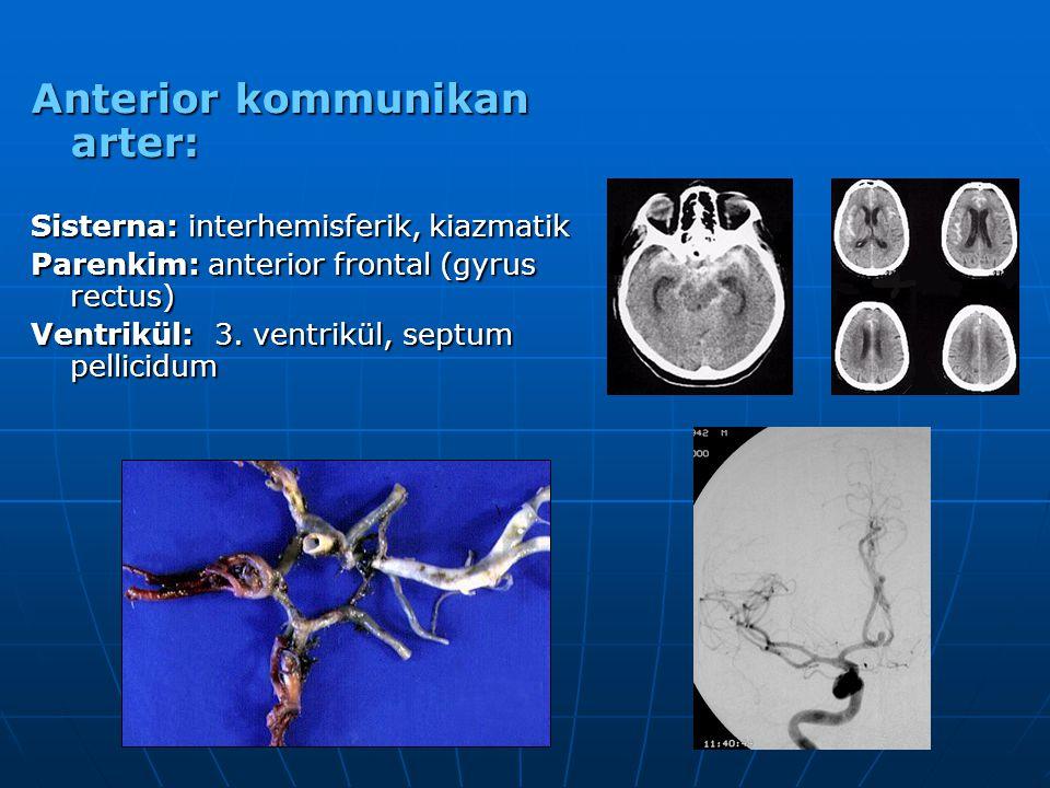 Anterior kommunikan arter: Sisterna: interhemisferik, kiazmatik Parenkim: anterior frontal (gyrus rectus) Ventrikül: 3. ventrikül, septum pellicidum