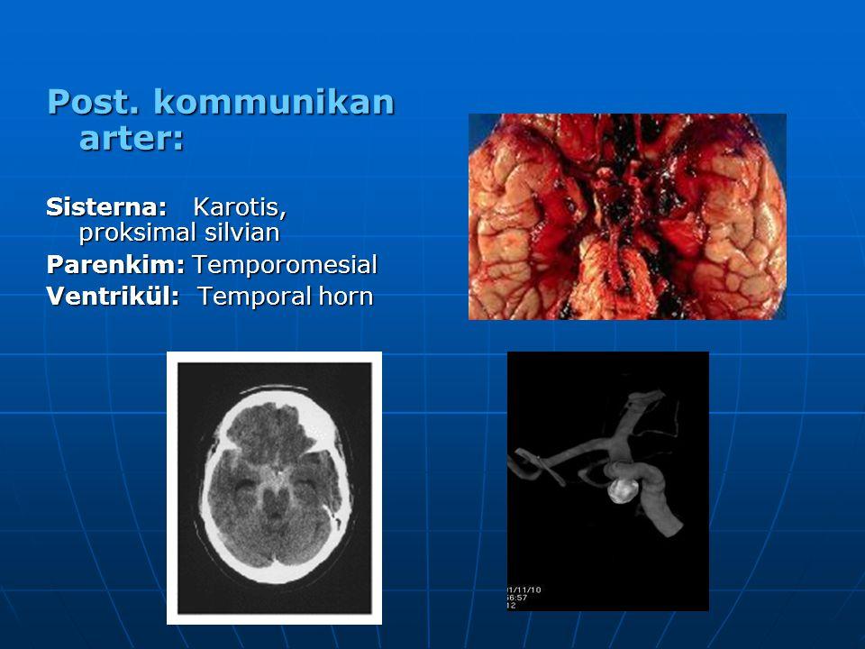 Post. kommunikan arter: Sisterna: Karotis, proksimal silvian Parenkim: Temporomesial Ventrikül: Temporal horn