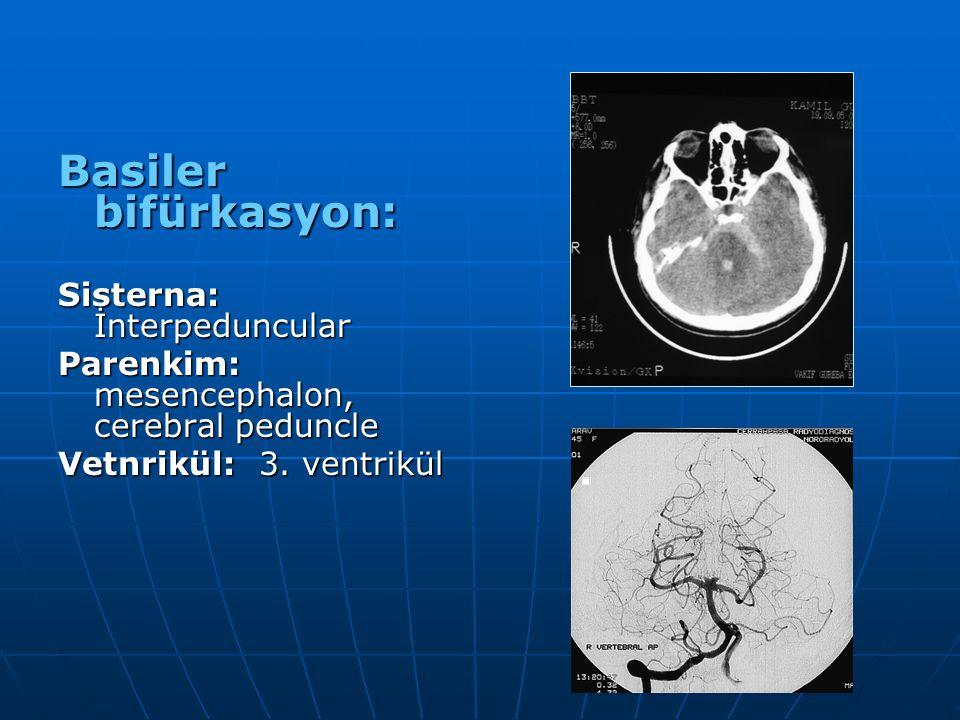 Basiler bifürkasyon: Sisterna: İnterpeduncular Parenkim: mesencephalon, cerebral peduncle Vetnrikül: 3. ventrikül