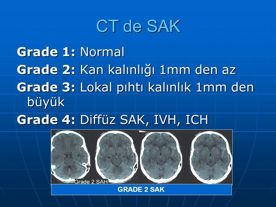 CT de SAK Grade 1: Normal Grade 2: Kan kalınlığı 1mm den az Grade 3: Lokal pıhtı kalınlık 1mm den büyük Grade 4: Diffüz SAK, IVH, ICH GRADE 2 SAK