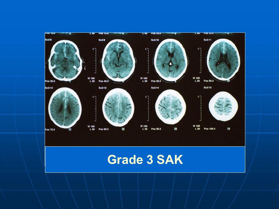 Grade 3 SAK