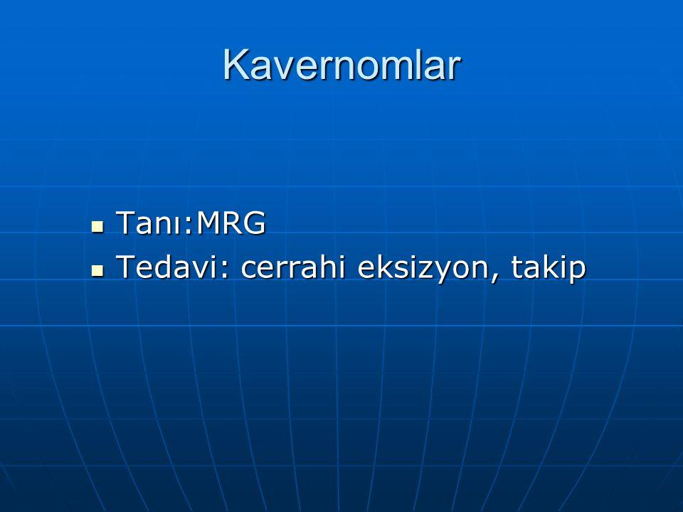Kavernomlar Tanı:MRG Tanı:MRG Tedavi: cerrahi eksizyon, takip Tedavi: cerrahi eksizyon, takip