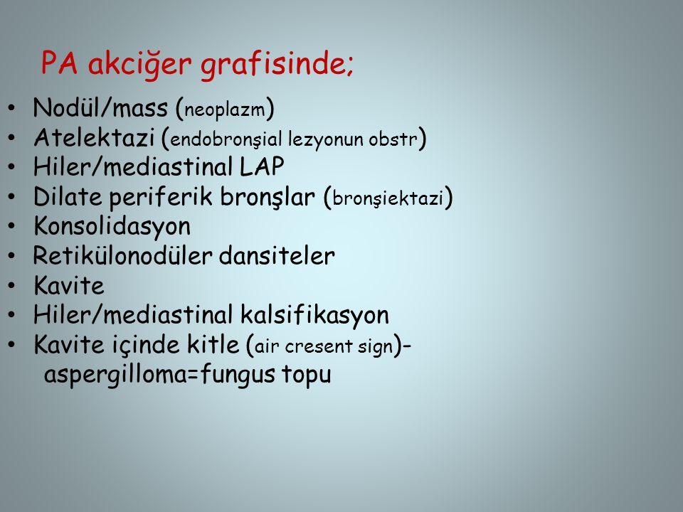 PA akciğer grafisinde; Nodül/mass ( neoplazm ) Atelektazi ( endobronşial lezyonun obstr ) Hiler/mediastinal LAP Dilate periferik bronşlar ( bronşiekta