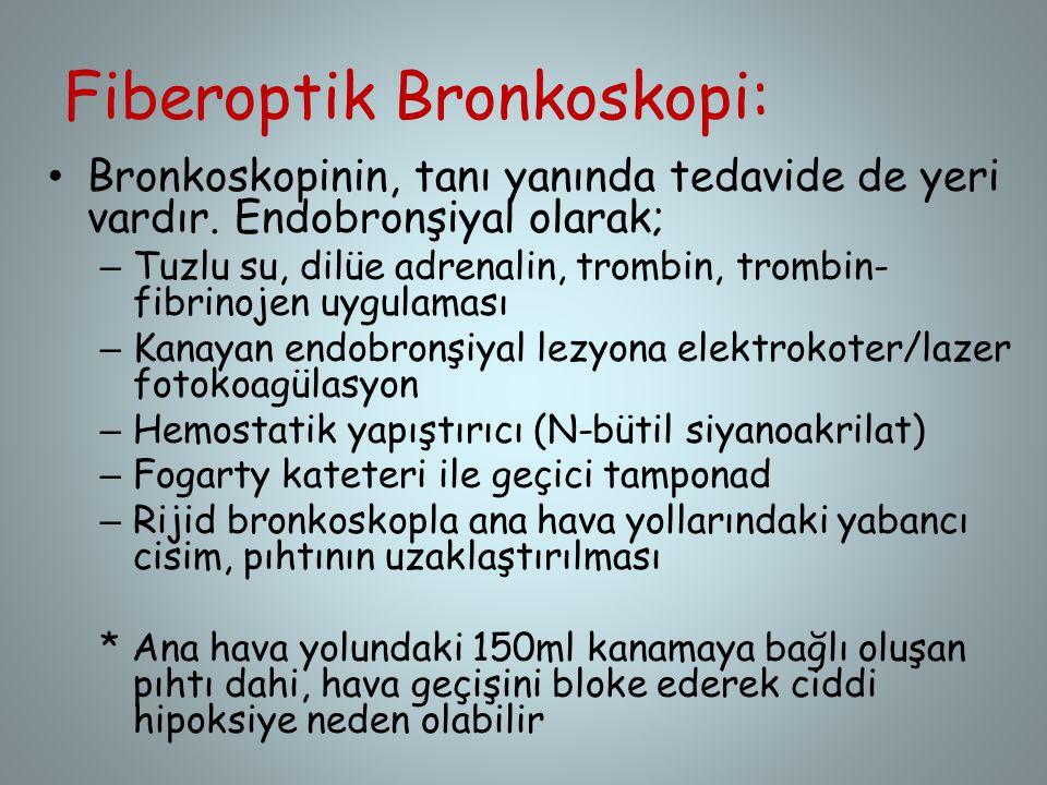 Fiberoptik Bronkoskopi: Bronkoskopinin, tanı yanında tedavide de yeri vardır. Endobronşiyal olarak; – Tuzlu su, dilüe adrenalin, trombin, trombin- fib