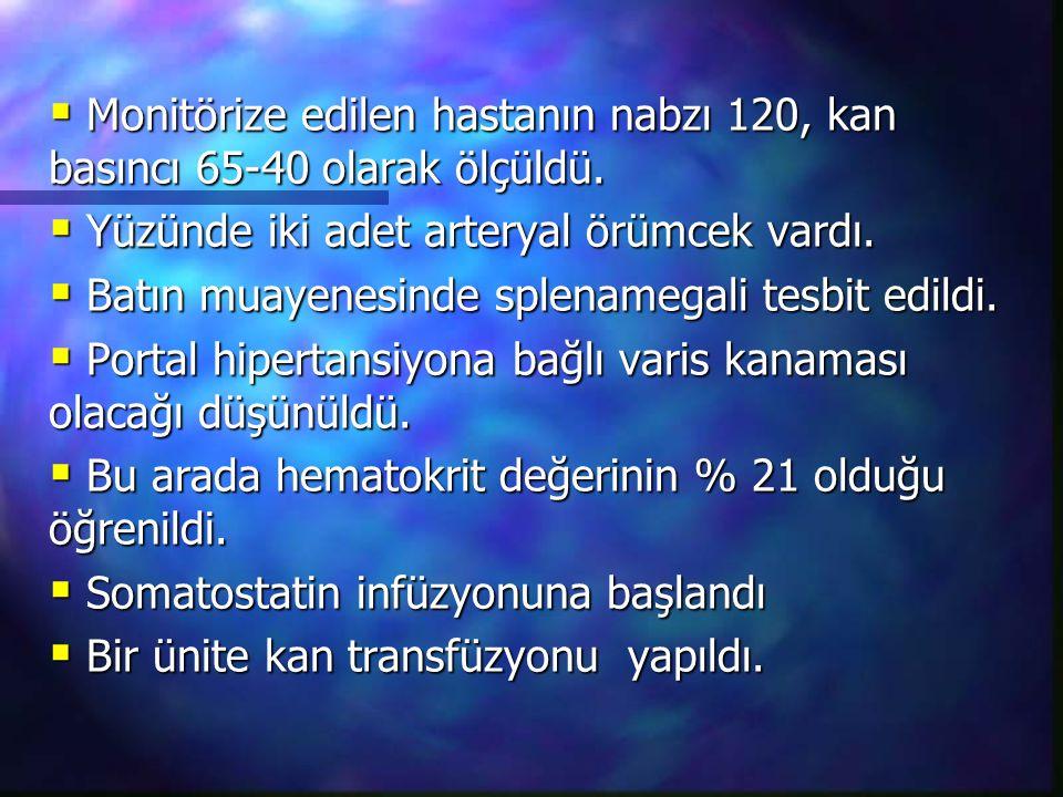  Monitörize edilen hastanın nabzı 120, kan basıncı 65-40 olarak ölçüldü.  Yüzünde iki adet arteryal örümcek vardı.  Batın muayenesinde splenamegali