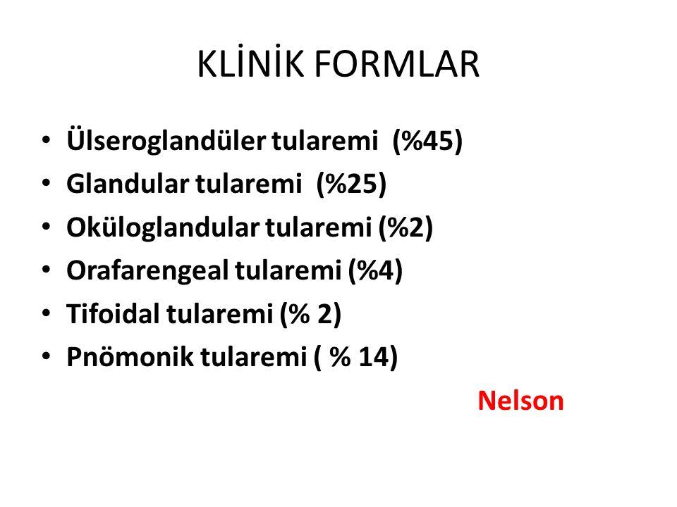 KLİNİK FORMLAR Ülseroglandüler tularemi (%45) Glandular tularemi (%25) Oküloglandular tularemi (%2) Orafarengeal tularemi (%4) Tifoidal tularemi (% 2)