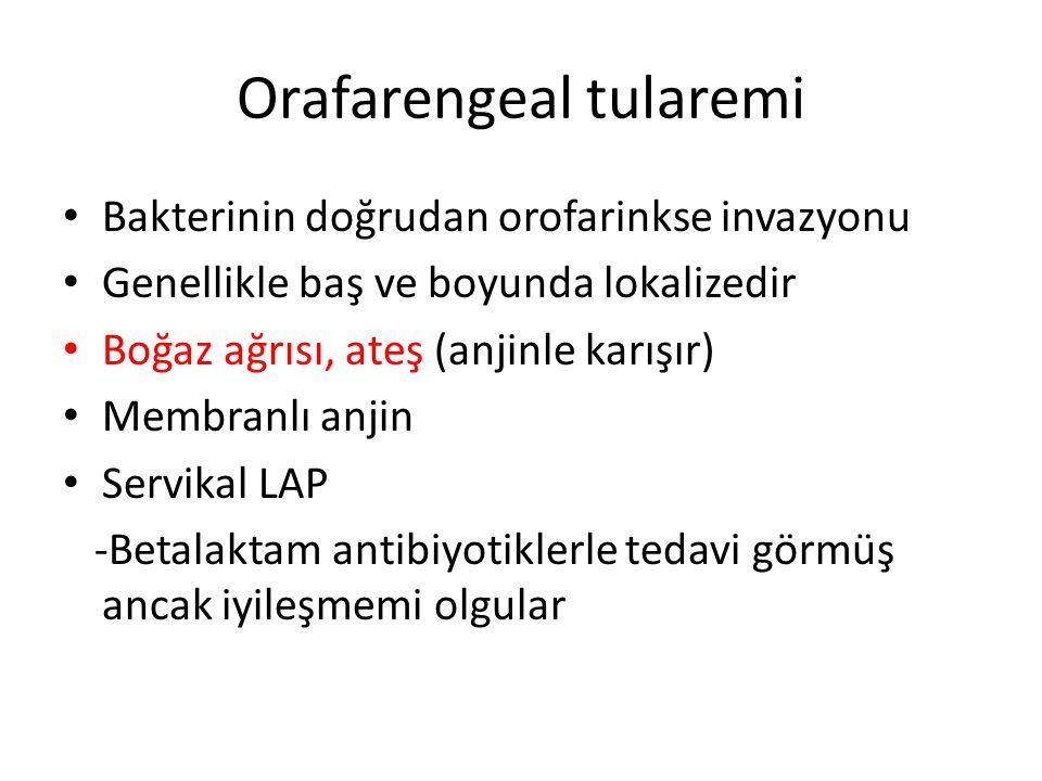 Orafarengeal tularemi Bakterinin doğrudan orofarinkse invazyonu Genellikle baş ve boyunda lokalizedir Boğaz ağrısı, ateş (anjinle karışır) Membranlı a