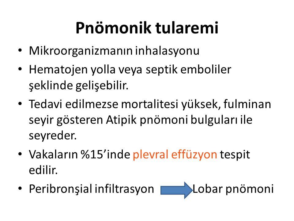 Pnömonik tularemi Mikroorganizmanın inhalasyonu Hematojen yolla veya septik emboliler şeklinde gelişebilir.