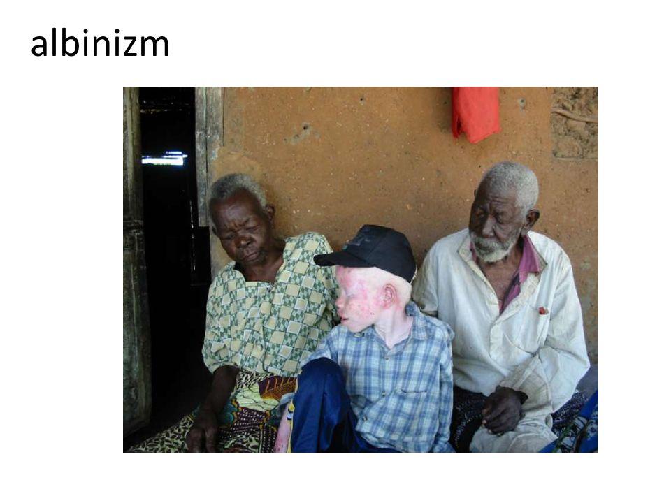 albinizm