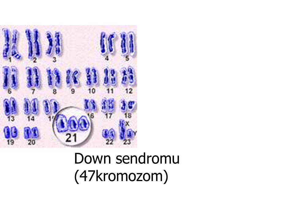 Down sendromu (47kromozom)