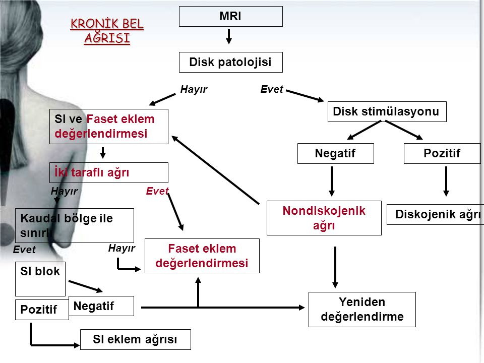 MRI Disk patolojisi EvetHayır Disk stimülasyonu NegatifPozitif Diskojenik ağrı Nondiskojenik ağrı SI ve Faset eklem değerlendirmesi İki taraflı ağrı K