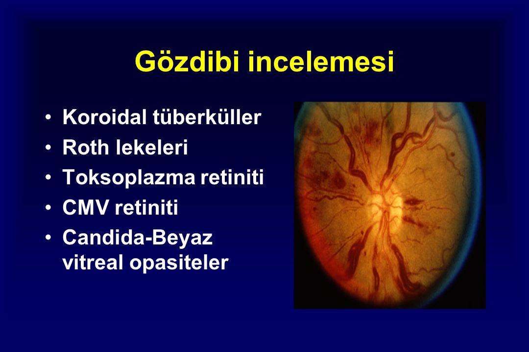 Gözdibi incelemesi Koroidal tüberküller Roth lekeleri Toksoplazma retiniti CMV retiniti Candida-Beyaz vitreal opasiteler
