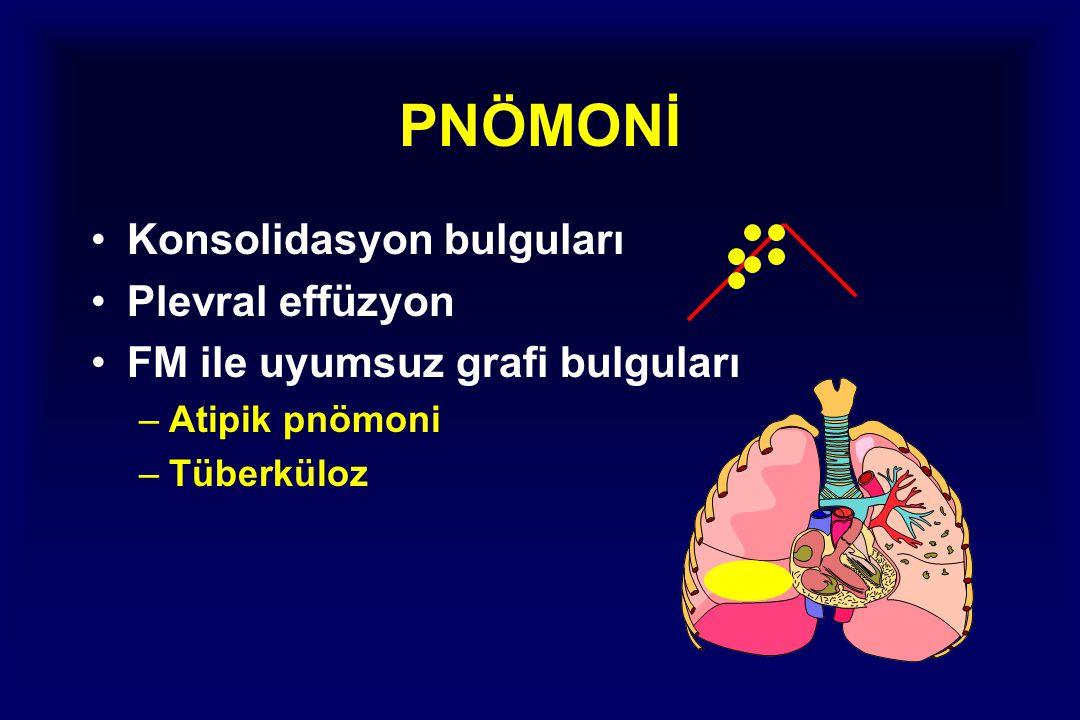 PNÖMONİ Konsolidasyon bulguları Plevral effüzyon FM ile uyumsuz grafi bulguları –Atipik pnömoni –Tüberküloz