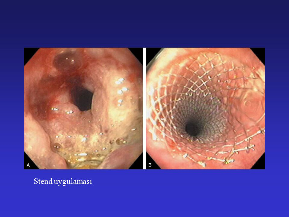 MİDE TÜMÖRLERİ Midenin Sık Görülen Primer Malign Tümörleri 1.Mide karsinomu (Adenokarsinoma) 2.