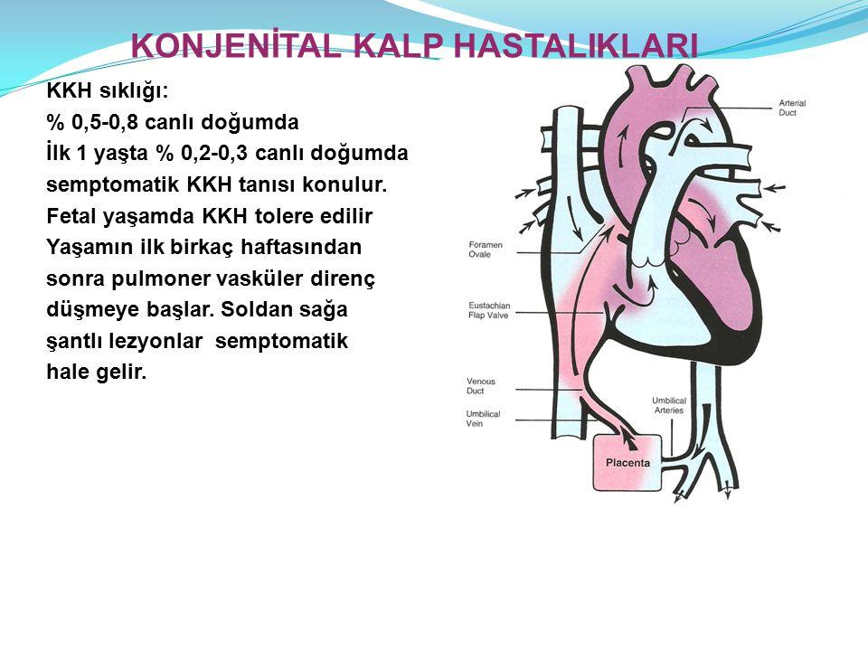 KKH sıklığı: % 0,5-0,8 canlı doğumda İlk 1 yaşta % 0,2-0,3 canlı doğumda semptomatik KKH tanısı konulur.