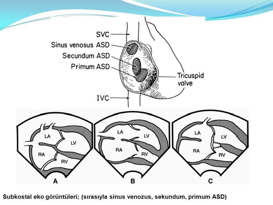 Subkostal eko görüntüleri; (sırasıyla sinus venozus, sekundum, primum ASD)