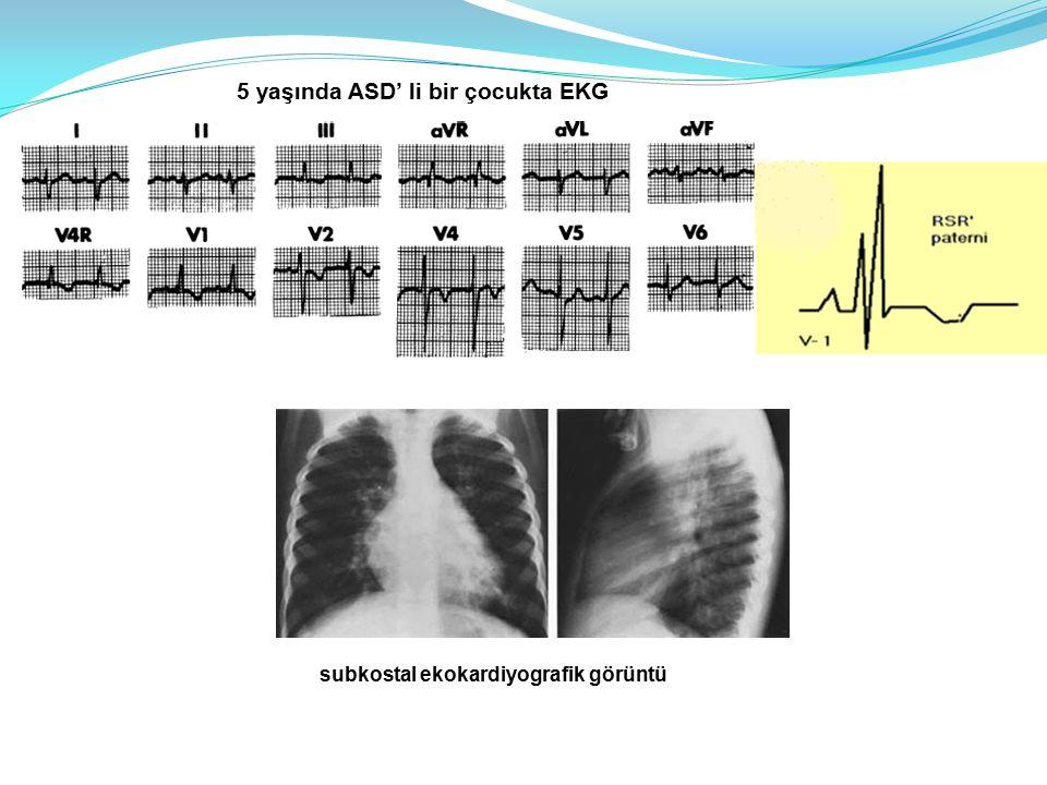 5 yaşında ASD' li bir çocukta EKG subkostal ekokardiyografik görüntü