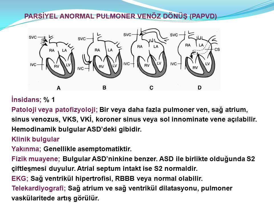 İnsidans; % 1 Patoloji veya patofizyoloji; Bir veya daha fazla pulmoner ven, sağ atrium, sinus venozus, VKS, VKİ, koroner sinus veya sol innominate vene açılabilir.
