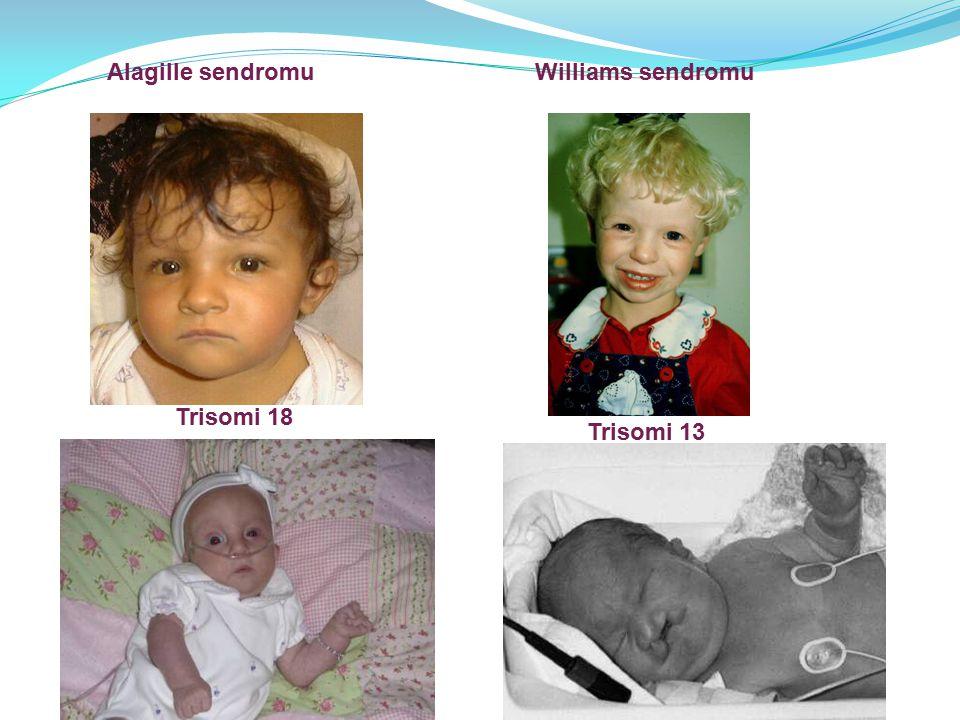 Alagille sendromuWilliams sendromu Trisomi 18 Trisomi 13