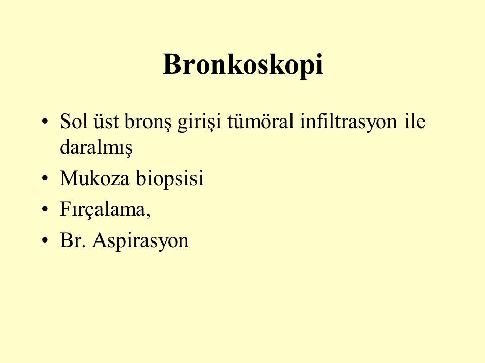 Bronkoskopi Sol üst bronş girişi tümöral infiltrasyon ile daralmış Mukoza biopsisi Fırçalama, Br. Aspirasyon