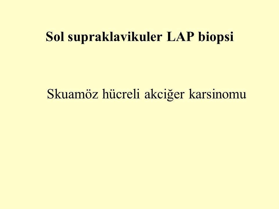 Sol supraklavikuler LAP biopsi Skuamöz hücreli akciğer karsinomu