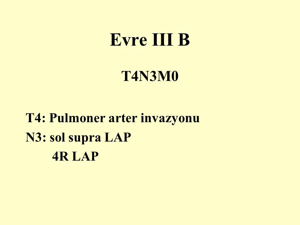 T4N3M0 T4: Pulmoner arter invazyonu N3: sol supra LAP 4R LAP Evre III B