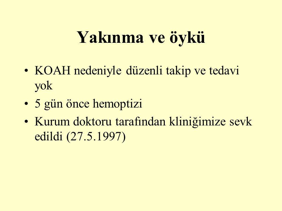 Yakınma ve öykü KOAH nedeniyle düzenli takip ve tedavi yok 5 gün önce hemoptizi Kurum doktoru tarafından kliniğimize sevk edildi (27.5.1997)