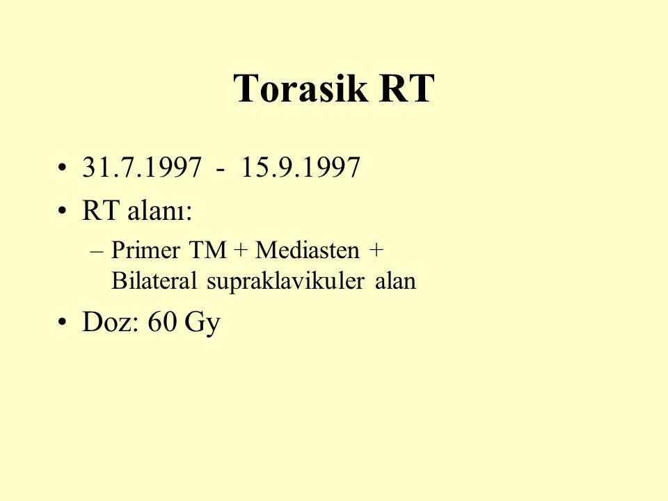 Torasik RT 31.7.1997 - 15.9.1997 RT alanı: –Primer TM + Mediasten + Bilateral supraklavikuler alan Doz: 60 Gy