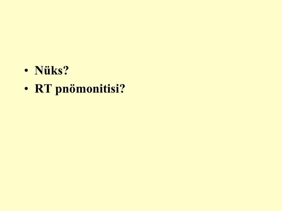 Nüks? RT pnömonitisi?
