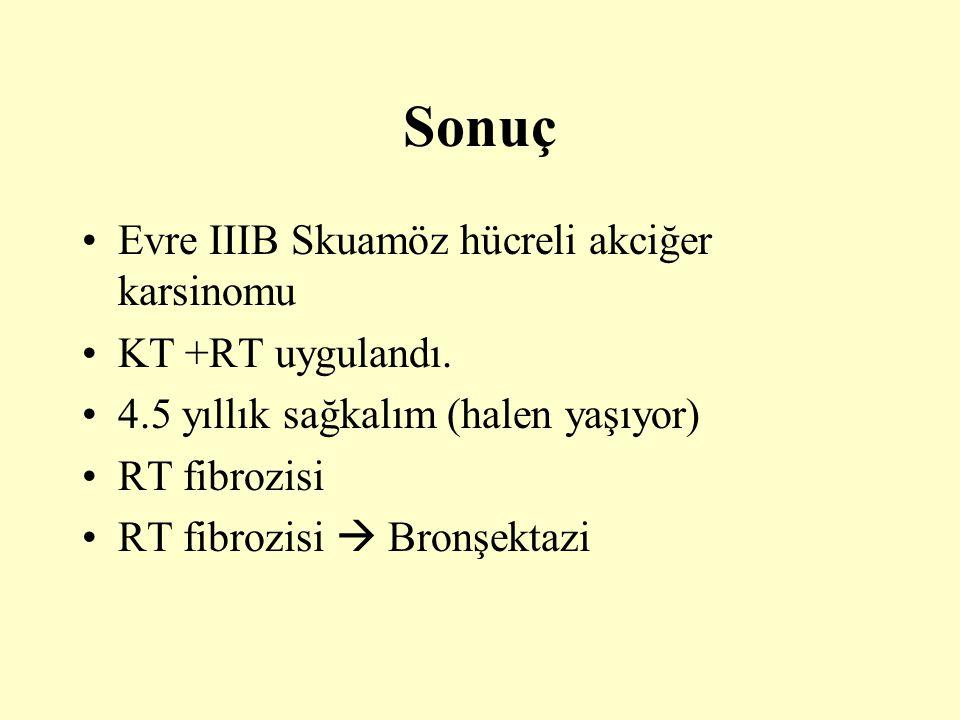 Sonuç Evre IIIB Skuamöz hücreli akciğer karsinomu KT +RT uygulandı. 4.5 yıllık sağkalım (halen yaşıyor) RT fibrozisi RT fibrozisi  Bronşektazi