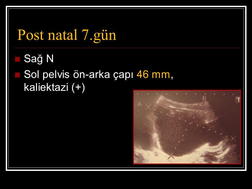 Post natal 7.gün Sağ N Sol pelvis ön-arka çapı 46 mm, kaliektazi (+)