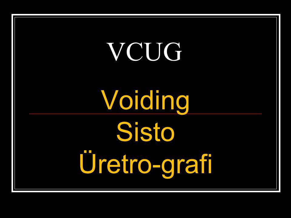 VCUG Voiding Sisto Üretro-grafi