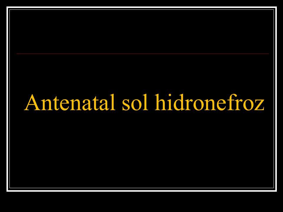 Antenatal sol hidronefroz