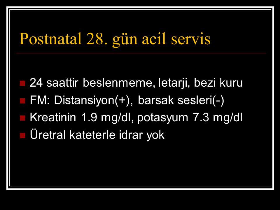 Postnatal 28. gün acil servis 24 saattir beslenmeme, letarji, bezi kuru FM: Distansiyon(+), barsak sesleri(-) Kreatinin 1.9 mg/dl, potasyum 7.3 mg/dl