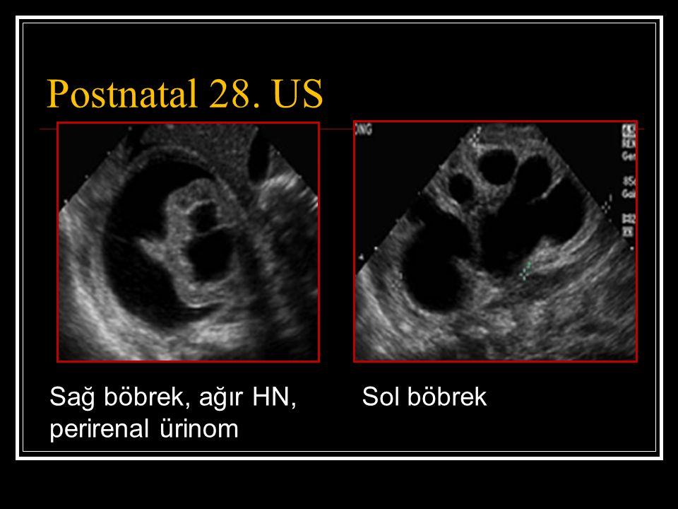 Postnatal 28. US Sol böbrekSağ böbrek, ağır HN, perirenal ürinom